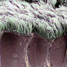 Bronchiolar epithelium (II)