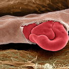 Squeezed red blood cells in ruptured capillary