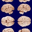 Whole brain