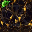 Neurones with glial cell (astrocyte) under the electron microscope