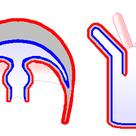 Cnidarians: jellyfish and polyps
