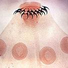 Scolex of Taenia solium